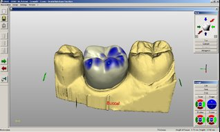 exocad post and core & snapon smile   3d Dental CAD/CAM forum